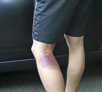 左大腿肉離れ痕